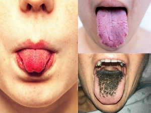 Warning Signs Your Tongue Is Trying To Tell You