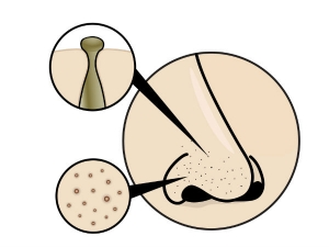 Blackheads On Face Here Are The Causes Symptoms And Treatment