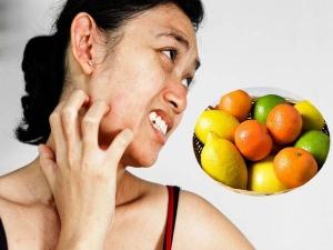 Citrus Allergy Symptoms Foods To Avoid