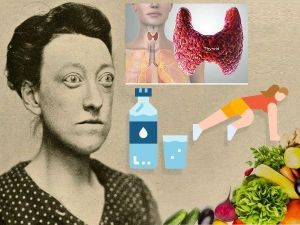 Natural Ways To Manage Graves Disease
