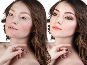 Tips On How To Get Rid Of Pimples Overnight