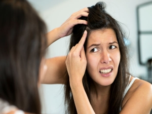 Home Remedies For Itchy Pimples On Scalp