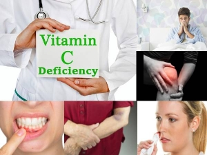 Early Warnings Your Body Is Low In Vitamin C