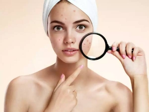 Home Remedies For Acne Scars That Really Work
