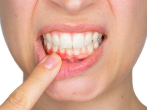 What Food Helps To Keep Gums And Teeth Healthy