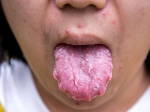 Have Blisters On Tongue Treat Them Before They Cause Infection