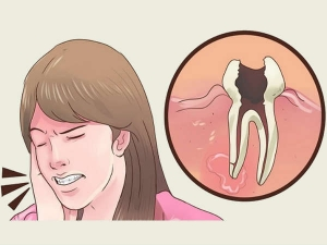 Are Your Cavities Giving You Sleepless Nights Get Relief From The Pain Naturally