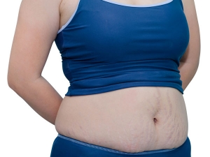 Easy Steps To Lose Belly Fat After Delivering A Baby