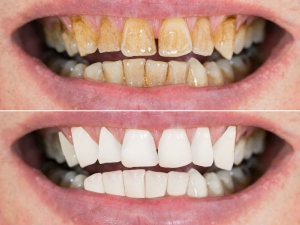 How To Remove Yellow Stains From Teeth Easily