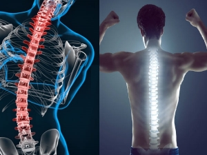 Ways To Keep Your Spine Healthy