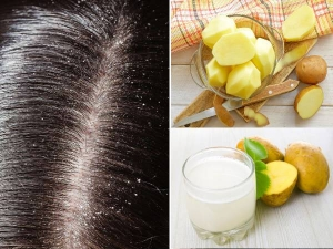Benefits Of Potato Juice For Hair