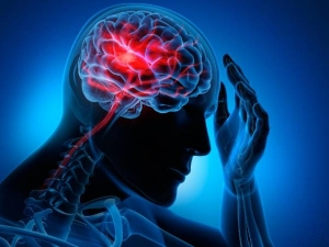 World Stroke Day 2020 Lifestyle Related Factors That Increase Your Risk Of Having A Stroke