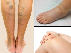 Ways Your Legs Can Show You If Something S Wrong With Your Inner Organs