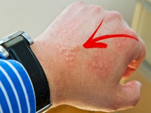 Basal Cell Carcinoma Symptoms Causes And Treatment