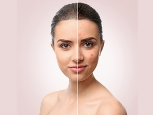 Kitchen Ingredients That Can Help To Fight Winter Acne