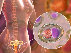 Things Every Woman Should Know About Cervical Cancer