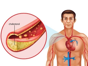 Foods That Increase Bad Cholesterol In The Body
