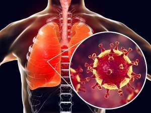 Symptoms That Covid 19 Is Impacting Your Lungs