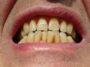 Best Ways To Naturally Whiten Yellow Teeth At Home