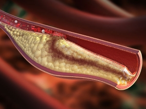 Is Rice Bad For Cholesterol