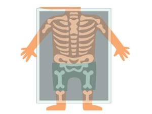 Things That Can Impact Your Child S Bone Development