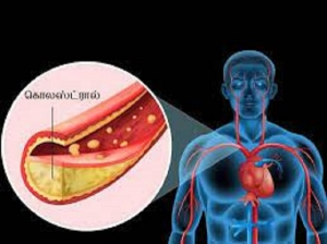 Common Mistakes That Can Increase Your Cholesterol Level