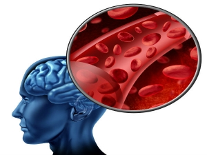 Lifestyle Habits That Increase Your Risk Of A Brain Stroke In Tamil