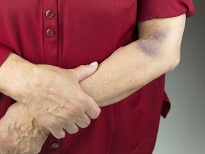 Possible Causes Of Easy And Frequent Bruising In Tamil